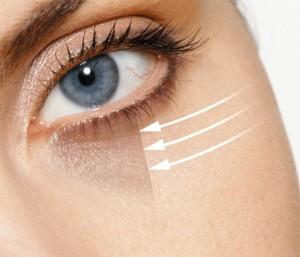 Ursache für dunkle Augenringe