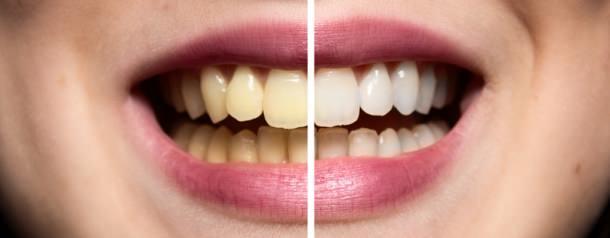 Hausmittel um gelbe zähne wieder weiß zu bekommen