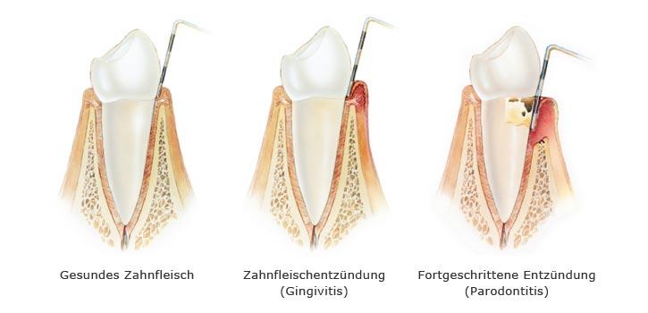 Richtige Zahnpflege um Parodontose vom Zahnfleisch zu vermeiden