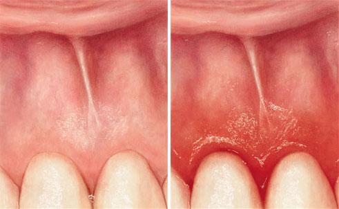 Parodontotse Zahnfleisch vergleich