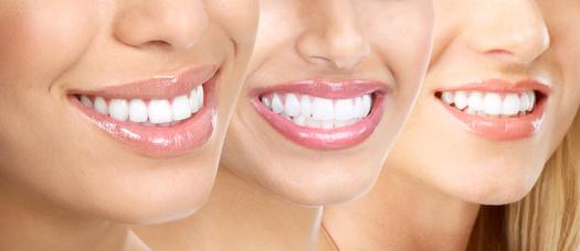 Schönere Zähne dank moderner Zahnkosmetik